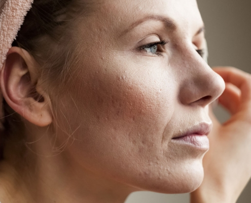 Cómo quitar las marcas de acné
